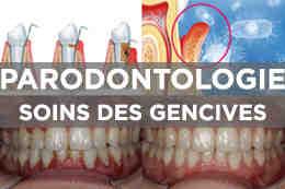 Parodontologie : soins des gencives