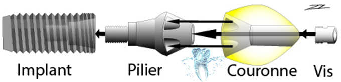 implant biarritz
